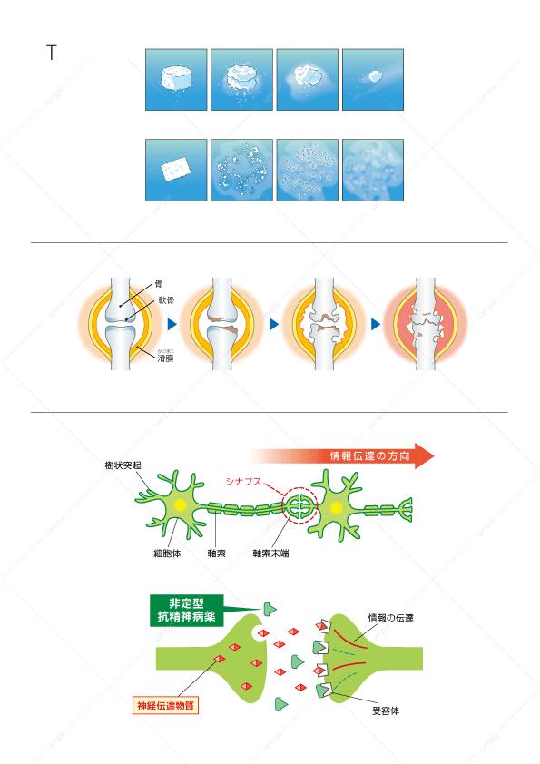 イラスト-錠剤-湿製錠-崩壊錠-リウマチ-ニューロン-抗精神薬